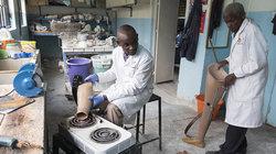 Um die Beinprothese mit dem künstlichen Fuß zu verbinden wird das untere Ende des modifizierten Plastikrohrs auf einer Herdplatte erhitzt. Noch heiß wird es auf den Fuß gestülpt und nach dem Erkalten mit Schrauben fixiert